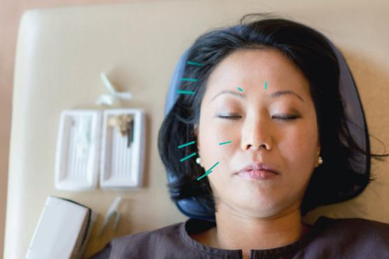 Relaxed Woman has acupuncture needles on her